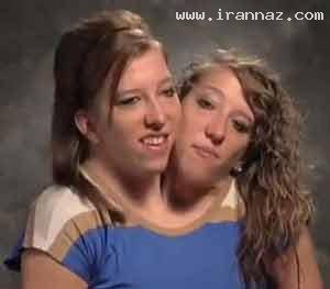 عجیب ترین دوقلوهای بهم چسبیده دختر در جهان