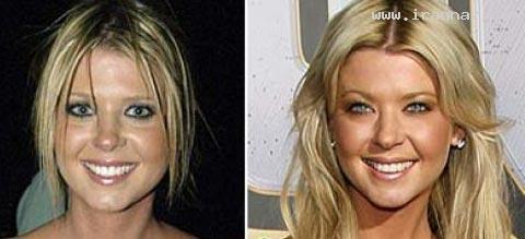معروفترین زنان دنیا با بیشترین جراحی زیبایی +عکس