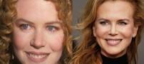 ستاره هایی با موفق ترین جراحیهای زیبایی +تصاویر