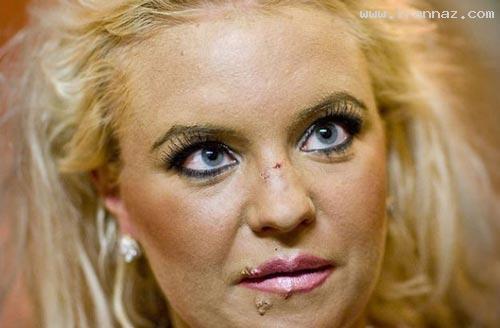 عکس های دختر زیبایی که با جراحی شبیه هیولا شد!