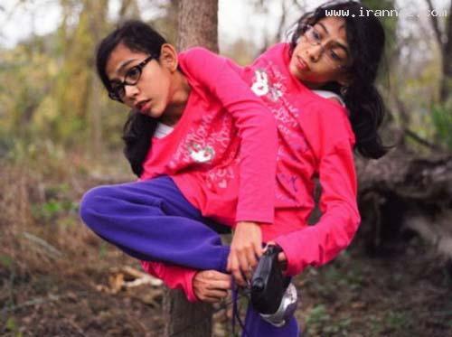 عکس هایی دیدنی از دوقلو های دختر بهم چسبیده!!