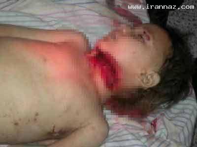 جنجال سر بریدن دختر بچه ای در سوریه، عکس (18+)
