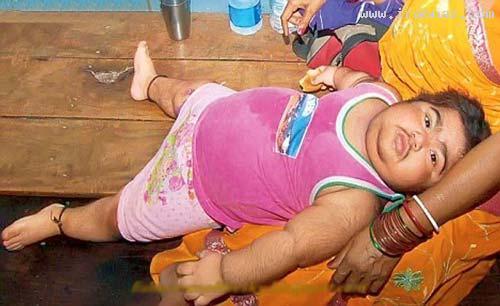 کودک 2 ساله ای که همانند مردان سبیل دارد +عکس