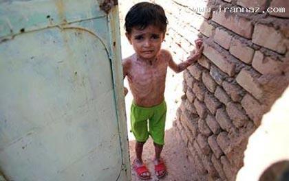 بیماری دردناک و باورنکردنی یک دختر ایرانی!! +تصاویر