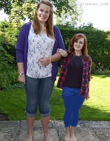 این دختر 19 ساله پا گنده ترین دختر دنیا شد! +عکس