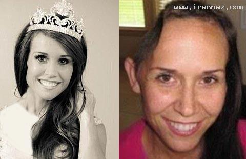 اتفاق شگفت انگیز برای ملکه زیبایی آمریکا (+عکس)