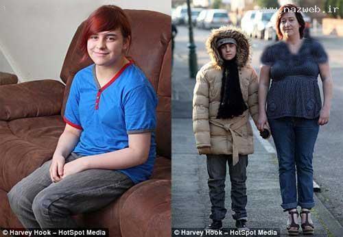 عکس العمل عجیب بدن دختری در برابر سرما +عکس