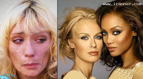 چهره مانکن مشهور پس از اعتیاد به شیشه (+عکس)