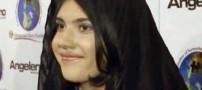 ترمیم بینی از جا کنده شده یک دختر جوان! (+عکس)