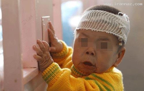 این دختر یک ساله شبیه پیرزنی 80 ساله شده است
