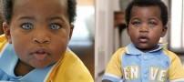 این پسر آفریقایی زیباترین چشم جهان را دارد! (عکس)