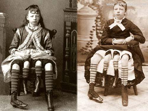 عکس های باورنکردنی از زنی بسیار عجیب با چهار پا!