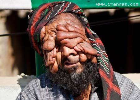 چهره ترسناک و عجیب یک مرد هندی!! (تصاویر 18+)
