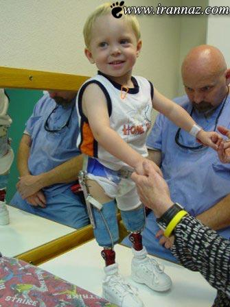 کودک عجیبی که اندازه پاهایش را تغییر میدهد (تصاویر)