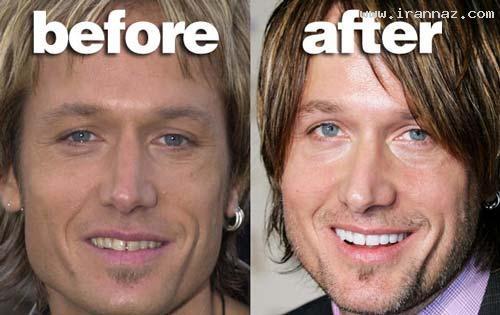عکس های چهره ستاره ها قبل و بعد از مشهور شدن