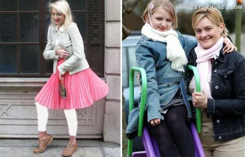 یک بیماری عجیب این دختر را به یک مانکن تبدیل کرده!