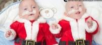 حیرت دنیایعلم از تولد دوقلوهای زودرس ! (عکس)