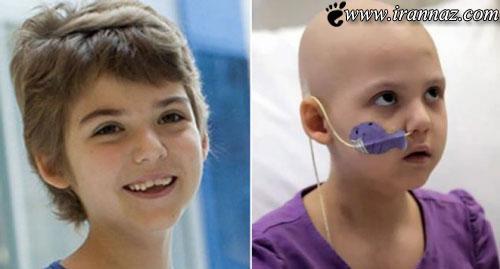 درمان بسیار عجیب یک دختر سرطانی با ویروس ایدز!!