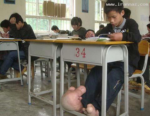 پسری چینی و عجیب با بزرگترین پاهای جهان (عکس)