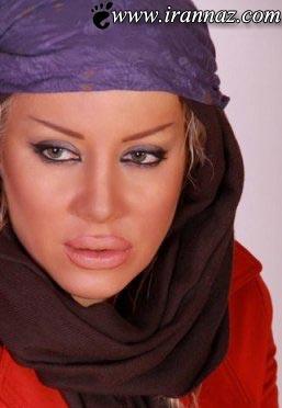 پشیمانی بازیگر ایرانی از پروتز کردن لبهایش (عکس)