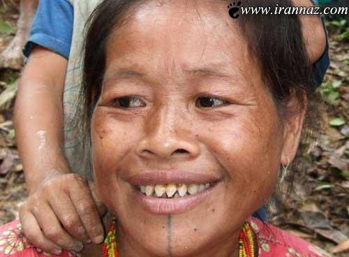 اقدام عجیب خانم های اندونزی برای زیبایی! (عکس)