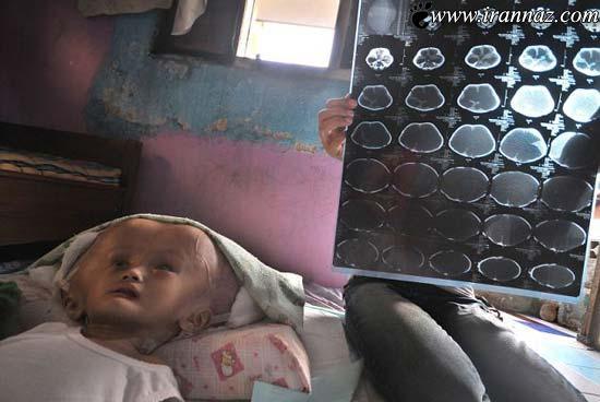 دختر بچه ای عجیب با سر باورنکردنی و عجیب! (عکس)