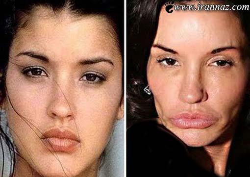 عکسهای خنده دار از ضایع ترین جراحی های زیبایی زنان