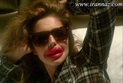 اقدام جالب مانکن معروف برای تمسخر جراحی زیبایی