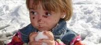 دختر بچه ای با پوستی نازک تر از پوست پروانه! (عکس)