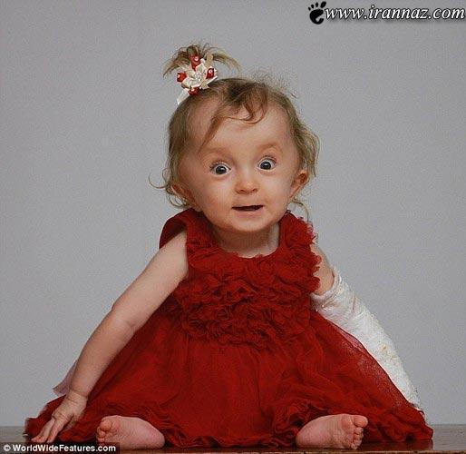 به دنیا آمدن نوزادی با 30 استخوان شکسته ! (تصاویر)