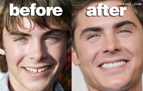 عکس های چهره ستاره ها قبل و بعد از مشهور شدن ، www.irannaz.com