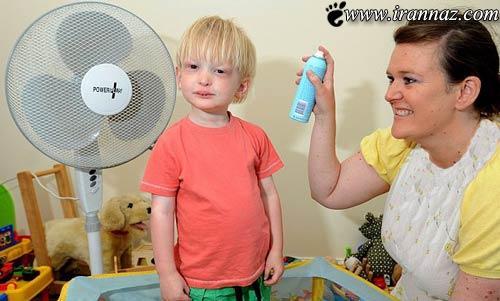 این پسر بچه که اگر گرمش بشود خواهد مرد! (عکس)