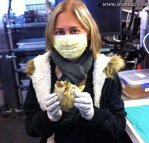 این دختر قلب واقعی خود را در دستانش گرفت (عکس)