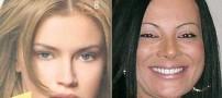 مرگ زن 38 ساله بدلیل حساسیت به رنگ مو (عکس)