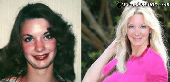 هدیه باورنکردنی زن معتاد به جراحی زیبایی به دخترش!!