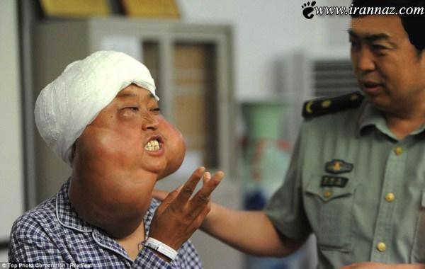 جراحی موفقیت آمیز چهره وحشتناک این خانم (تصاویر)