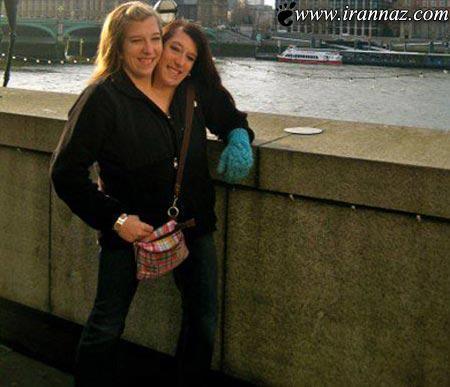 خواهران دوقلویی که همه دنیا را شگفت زده کرده اند!!