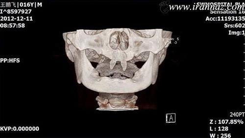 پسری عجیب با دندان هایی مانند خون آشامها (عکس)