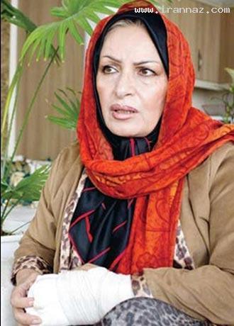 حمله و شکستن دست بازیگر زن ایرانی توسط دزدان!
