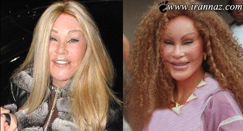 این خانم با جراحیهای متعدد به زن گربه ای تبدیل شد!
