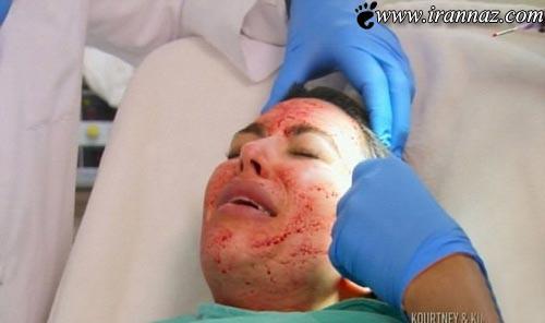 اقدام بسیار عجیب کیم کارداشیان روی پوست صورتش