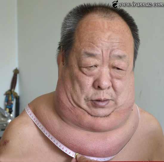 مردی وحشتناک با گردنی اندازه شانه هایش!!