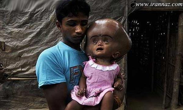 خداوند هیچ انسانی را دچار چنین دختری نکند (عکس)