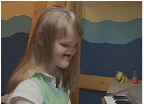 این دختری 16 ساله بدون چشم و بینی بدنیا آمد!!