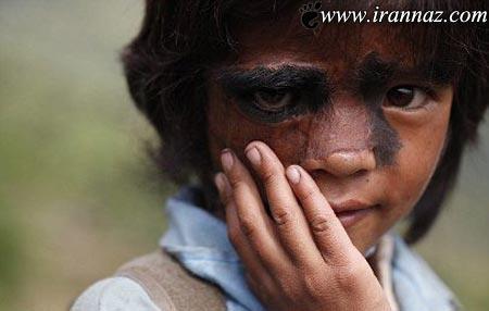 دختری با لقب غول بیابانی  جراحی می شود (عکس)