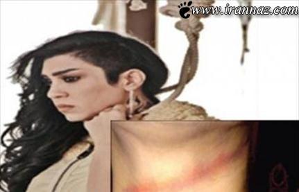 نجات معجزه آسای خانم بازیگر از صحنه اعدام (عکس)