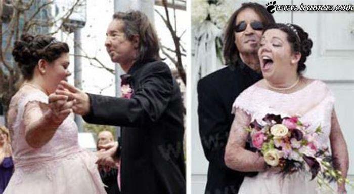 ازدواج جالب اولین دختر و پسر بیمار پیوند صورت (عکس)
