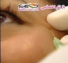 عکسهای زن هالیوودی هنگام تزریق بوتاکس!!