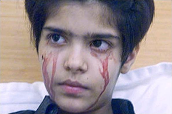 عکسهای دختری عجیب که خون گریه میکند !!