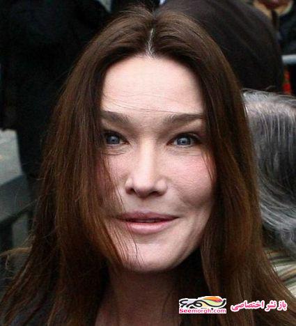 چهره وحشتناک کارلا برونی پس از عمل زیبایی!